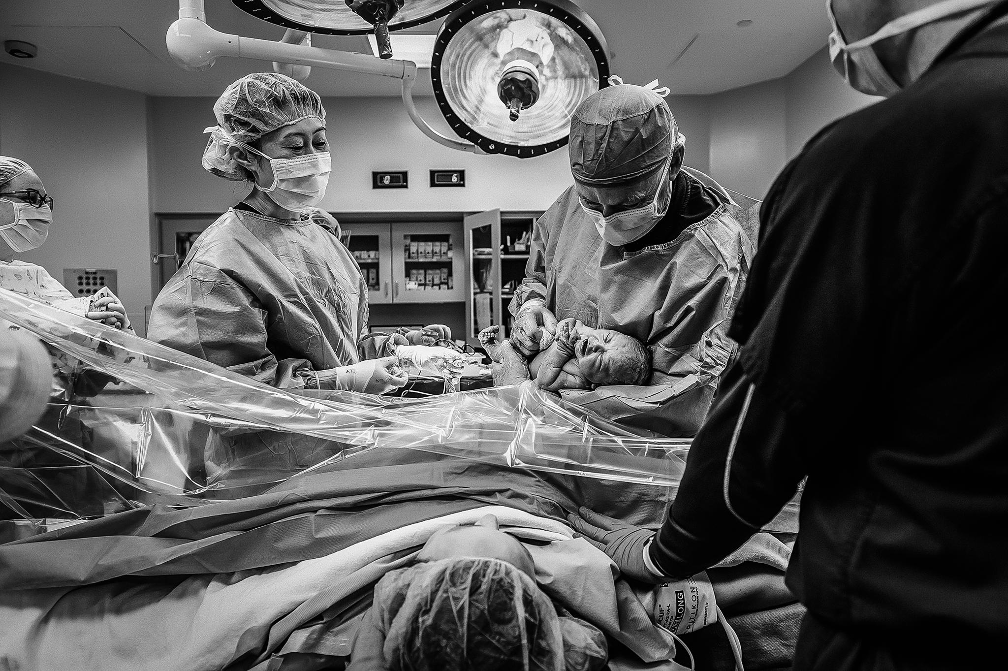 cesarean birth photo